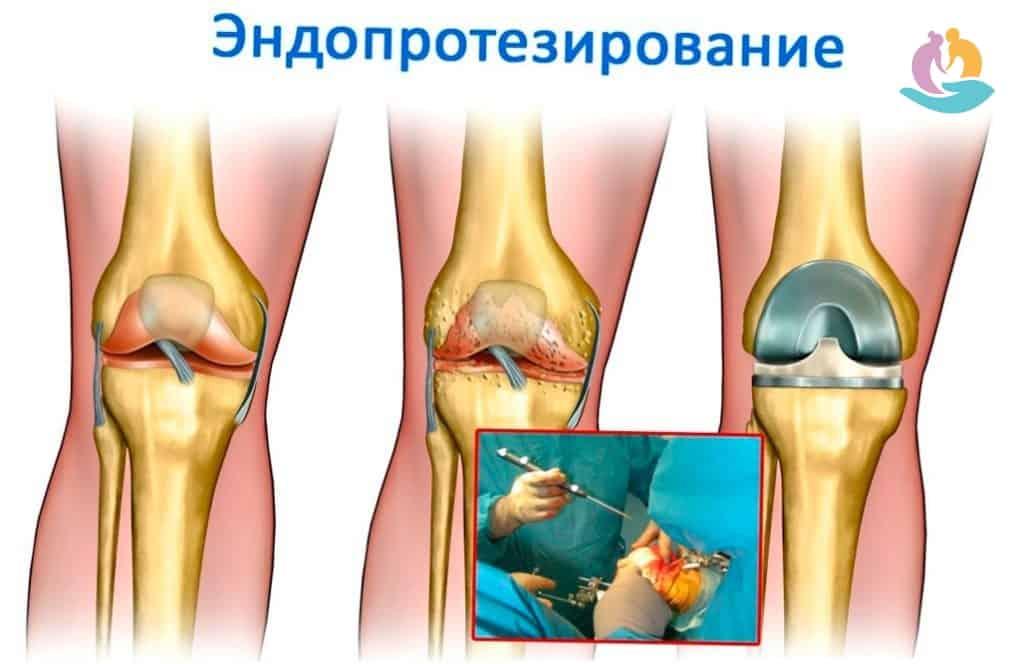 Комплексное лечение артроза коленного сустава опухли кисти рук и болят суставы чем лечить народные средства