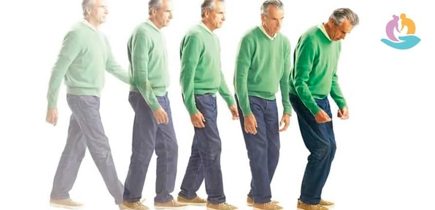 Причины возникновения и лечение болезни Паркинсона