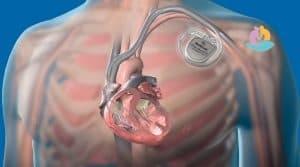 Где болит рука при инфаркте: признаки, боль при инфаркте миокарда