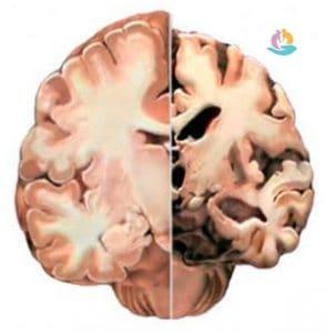 Определение понятия деменция основные формы