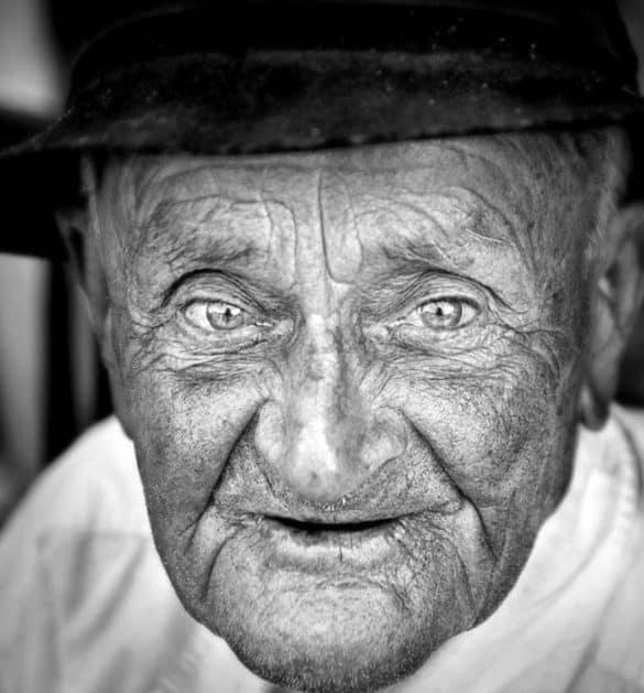 старческая астения