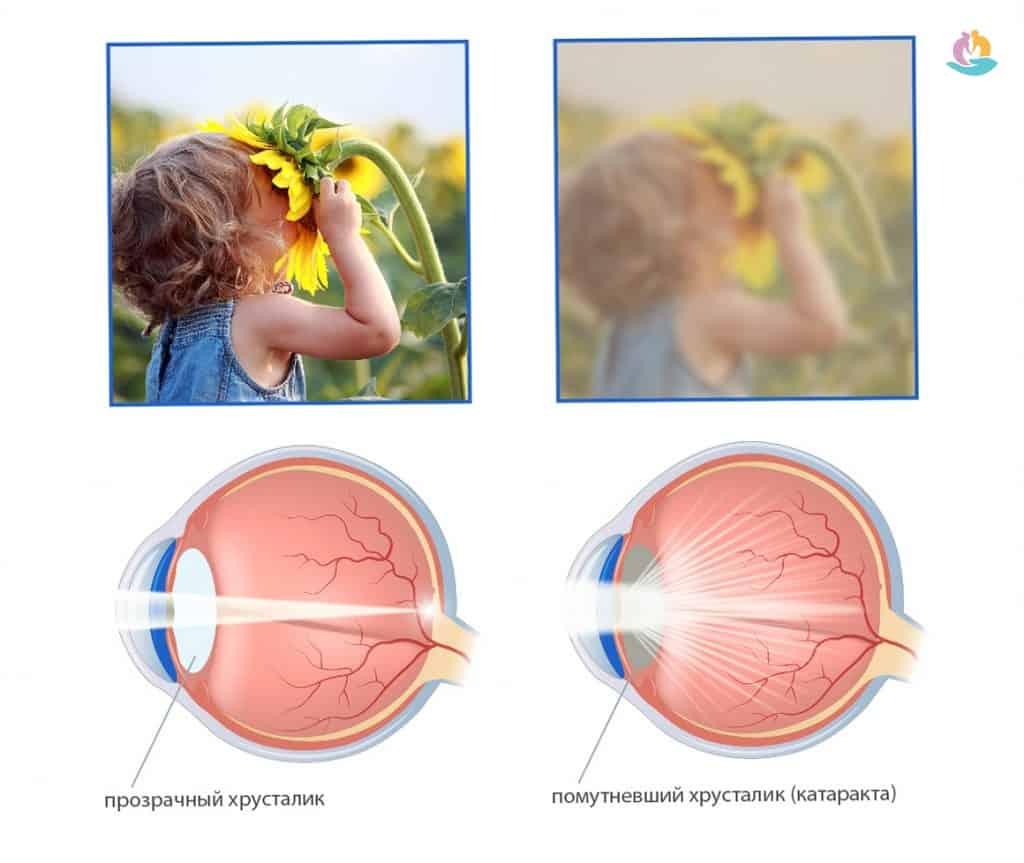 Что такое катаракта у пожилых