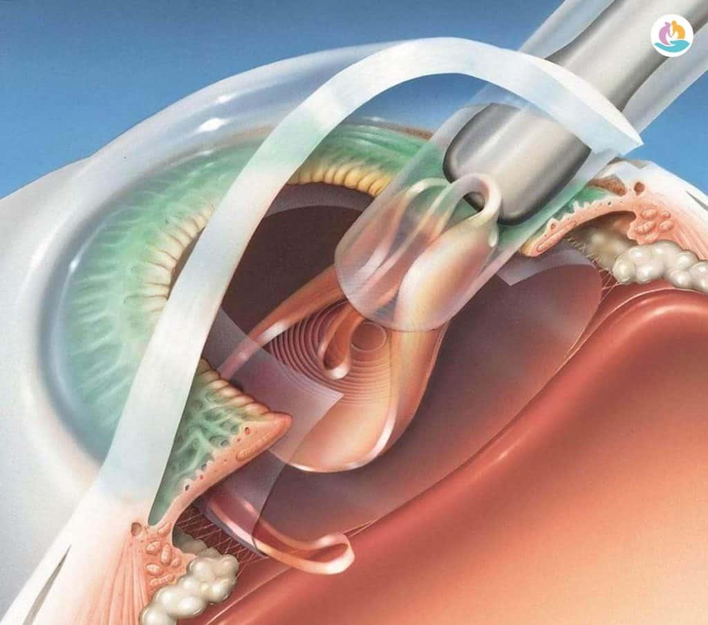 Чем опасна катаракта глаза в старости