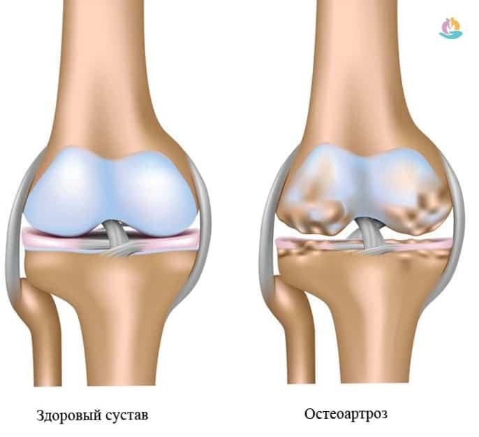 где сделать снимок м р т коленного сустава