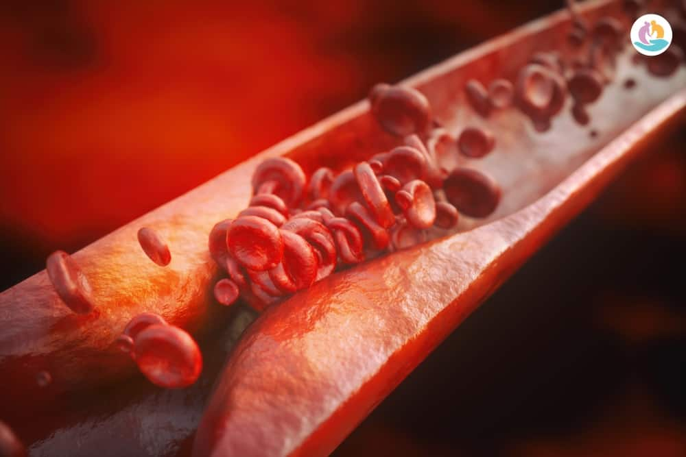 Атеросклероз: так ли уж он неизбежен и непобедим?